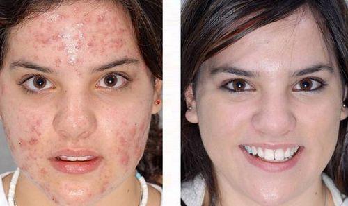 Лицо до и после применения крема