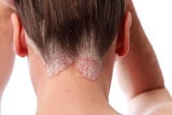Микозные состояния волосяной части