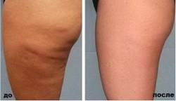 До и после использования крема
